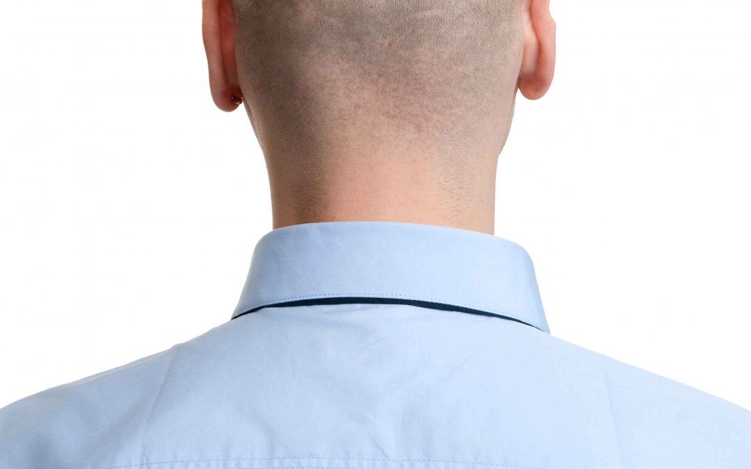 השתלת שיער בשיטת FUT
