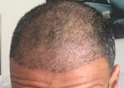 שבוע וחצי לאחר השתלת שיער